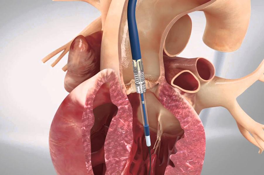 Понятие о регургитации клапана и особенности течения каждой формы