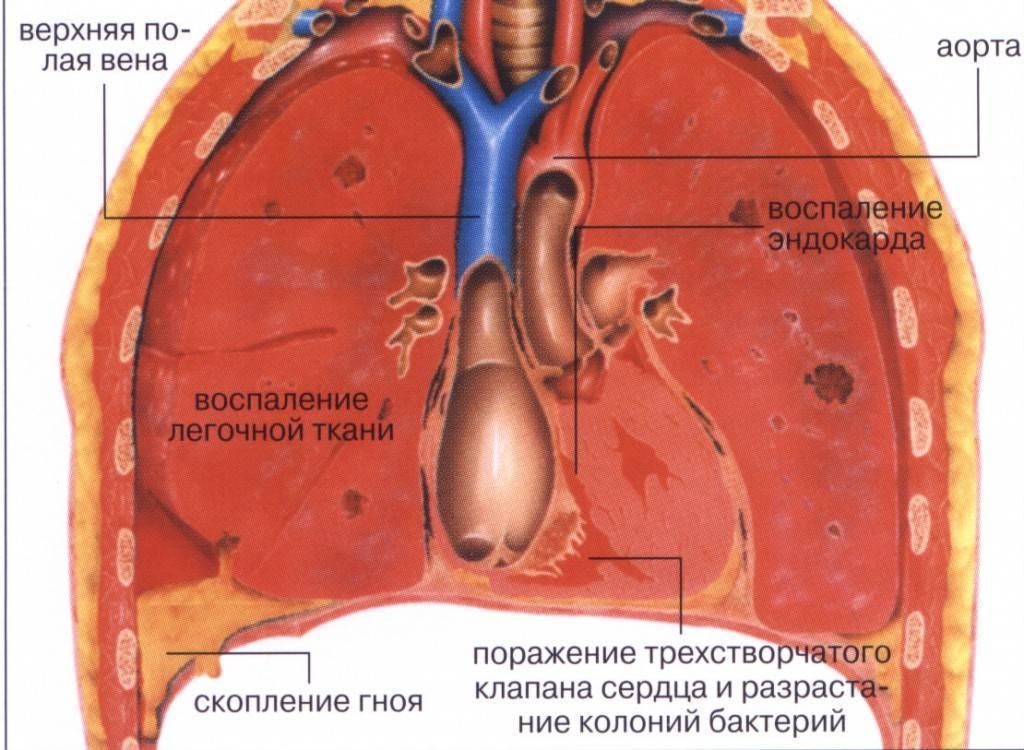 Лечение воспаления легких у взрослых на дому: народные средства и фитотерапия