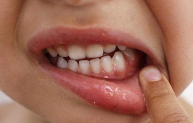 Гингивит у ребенка: симптомы и лечение — симптомы