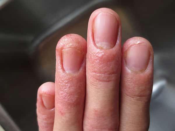 О чем говорит цвет ногтей на руках