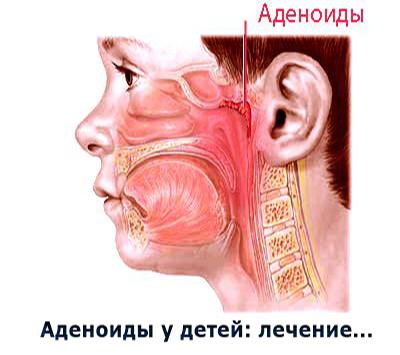 Как понять что у ребенка аденоиды симптомы: симптомы 1,2, 3 степени.