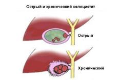 Что такое холецистит и его лечение