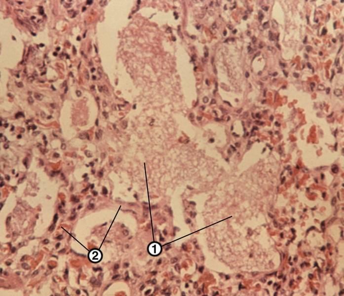 Вирусная пневмония: симптомы, лечение и профилактика заболевания