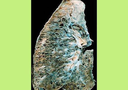 Фиброзирующий альвеолит: лечение