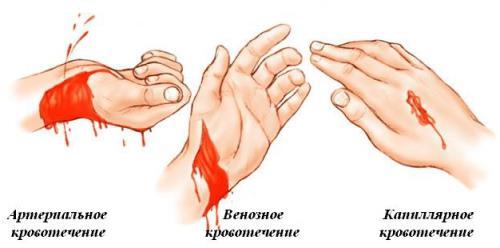 Первая медицинская помощь при кровотечениях