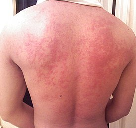 Аллергия на манту у ребенка: фото и симптомы