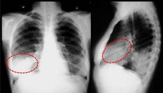 Описание пневмонии верхней доли правого легкого, основные принципы лечения