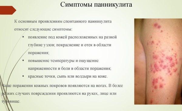 Особенности узловой эритемы