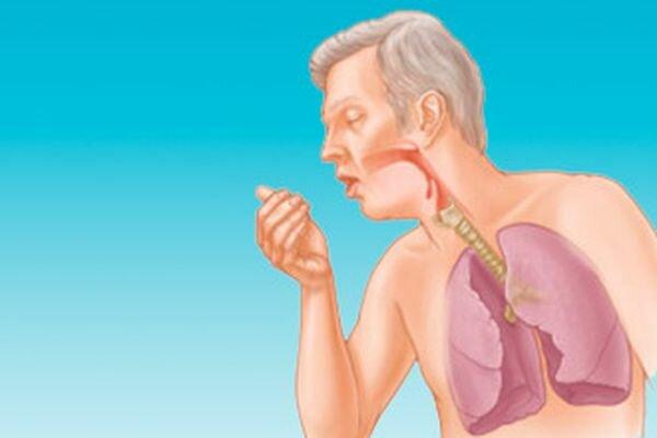Как начинается астма: симптомы у взрослых