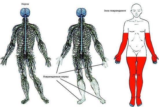 Что такое диабетическая полинейропатия – признаки и симптомы неврологического заболевания