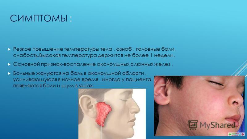 Паротит: симптомы, лечение, вакцинация