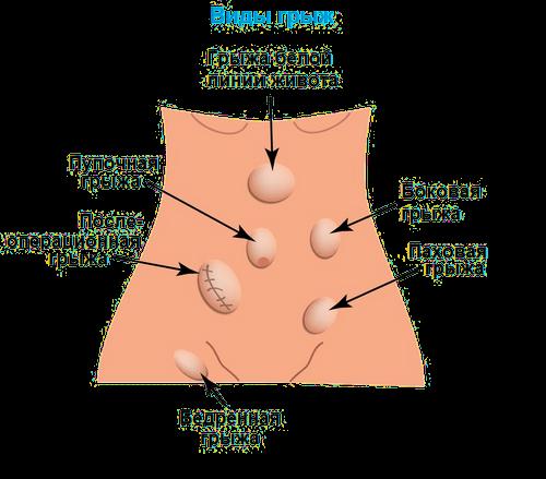 Пупочная грыжа: симптомы, лечение, диагностика