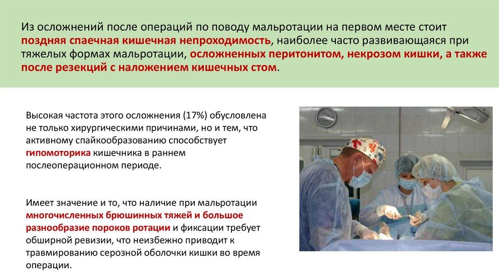 Кишечная непроходимость после операции в гинекологии