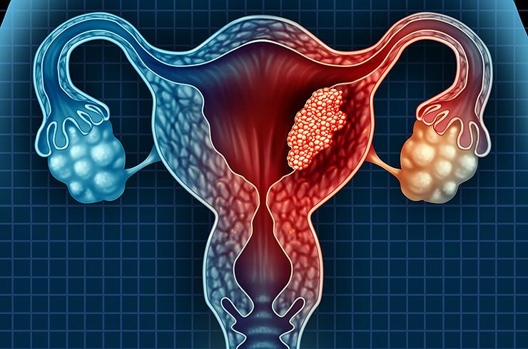 Рак шейки матки - самый распространенный вид онкологии среди женщин
