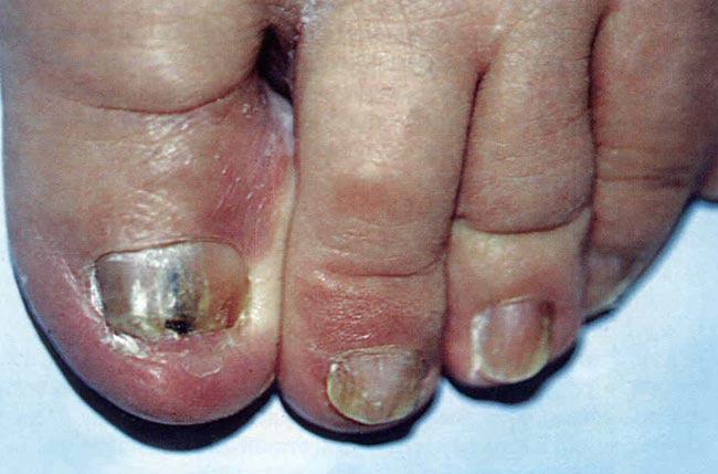 Симптомы и лечение онихомикоза