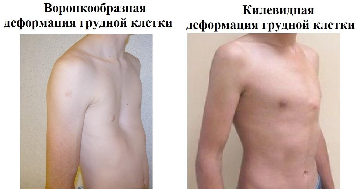 Воронкообразная грудная клетка у ребенка: что делать? грудь сапожника