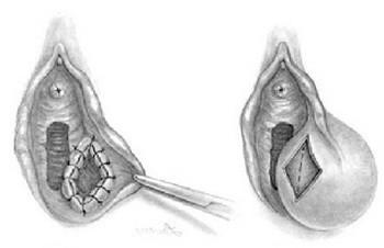 Абсцесс бартолиновой железы: причины, симптомы, лечение