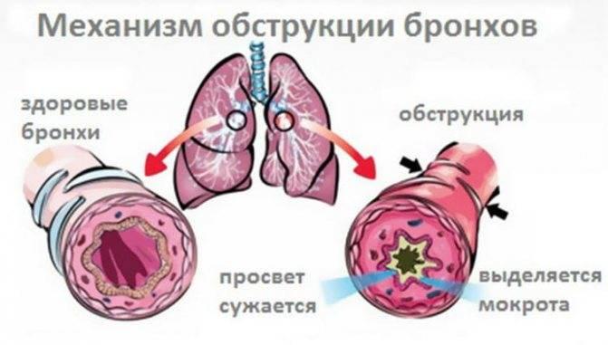 Трахеит   симптомы   диагностика   лечение - docdoc.ru