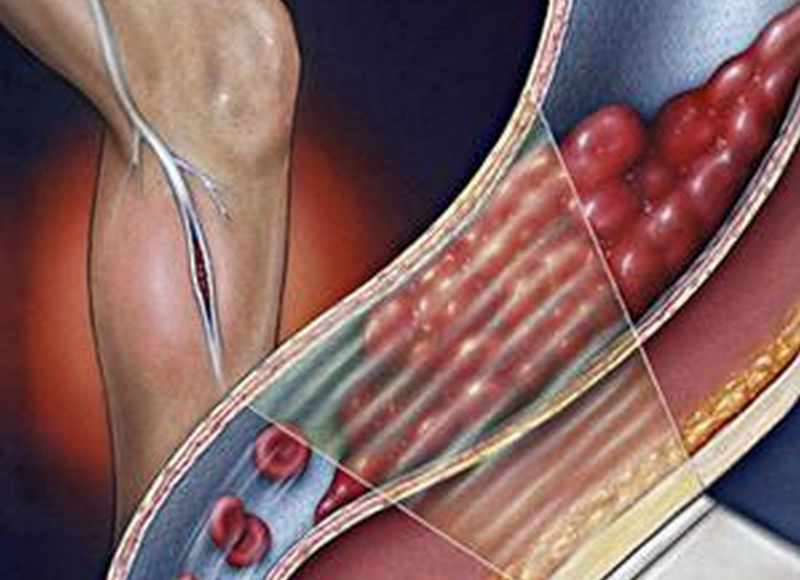 Диета при тромбозе глубоких вен нижних конечностей