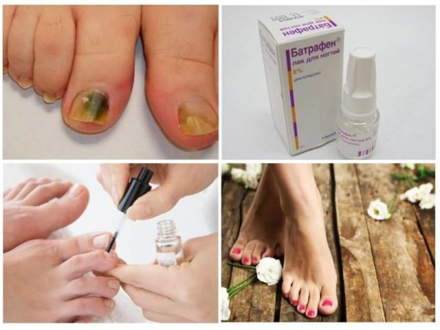Применение лака «батрафен» для ногтей