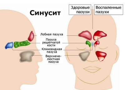 Кашель при гайморите: причины и симптомы