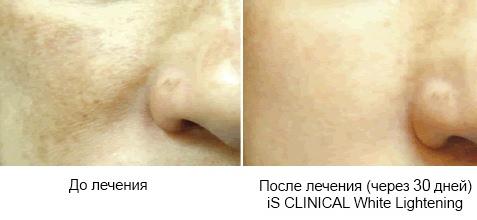 Депигментация кожи: про причины, лечение