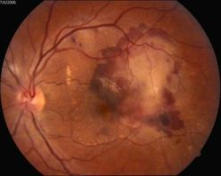 Макулодистрофия сетчатки глаза: лечение в одессе | медицинский дом odrex