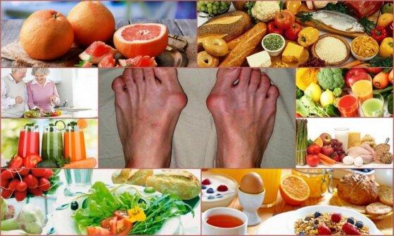 Остеоартроз коленного сустава диета лечение