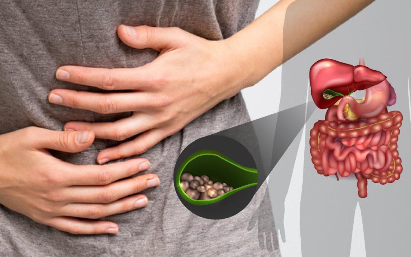 Приступ желчнокаменной болезни: симптомы, что делать в домашних условиях