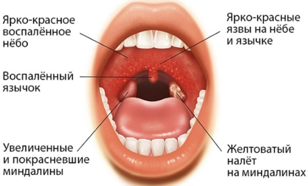 Симптомы хронического тонзиллита: признаки, лечение | food and health