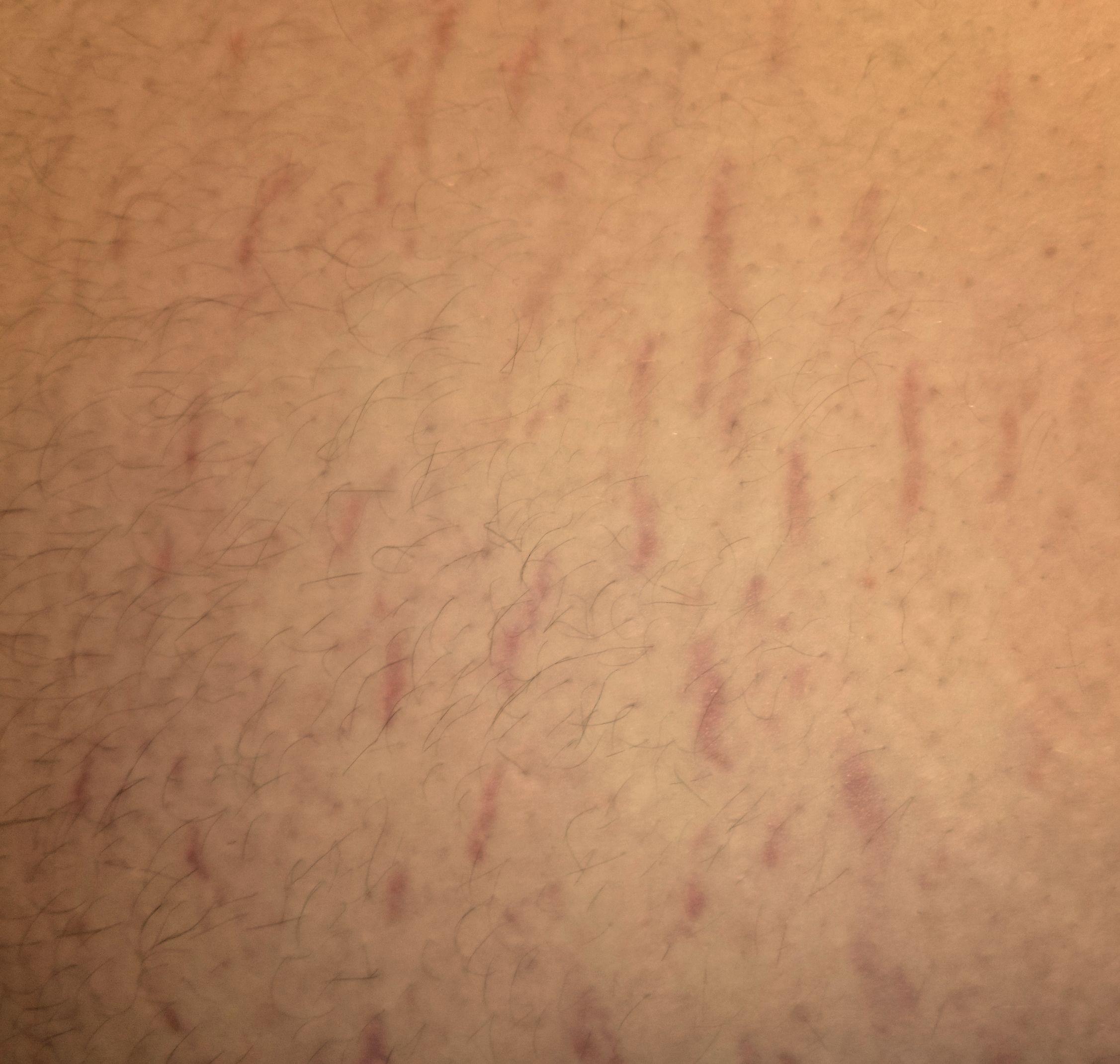 Почему на руках без причины появляются синяки и гематомы