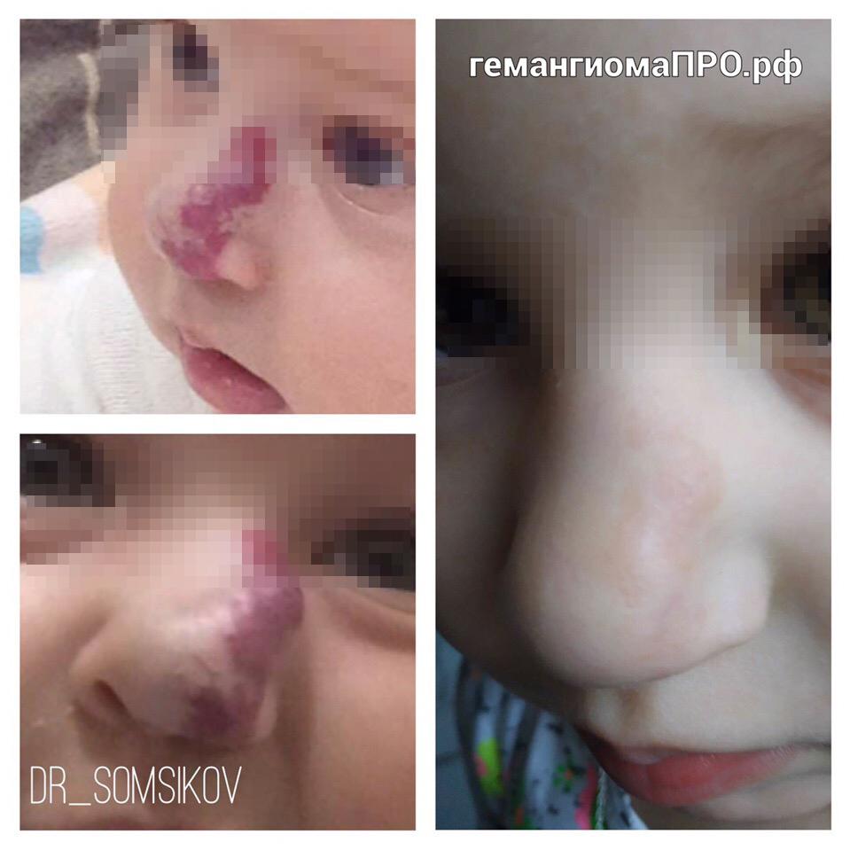 Капиллярная гемангиома: причины, симптомы, лечение