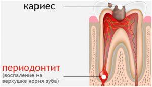 Обострение хронического периодонтита