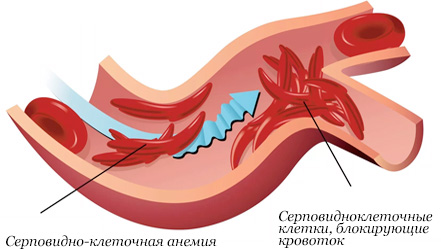 Правильное питание при глистах