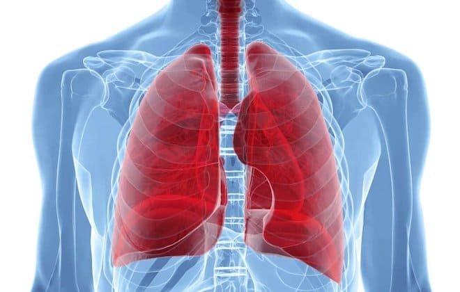 Метатуберкулезные изменения в легких: что это такое, чем опасно?