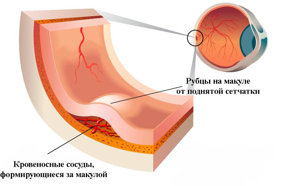 Макулодистрофия сетчатки глаза (макулярная дегенерация)