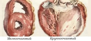 атеросклеротический кардиосклероз: симптомы и лечение. атеросклеротический кардиосклероз: почему возникает эта форма ибс и как ее лечить.