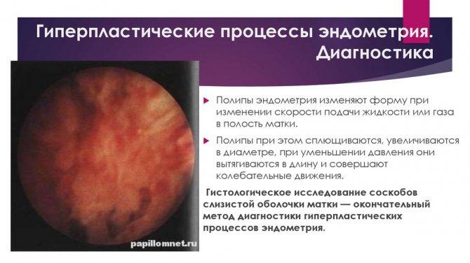 Признаки гиперпластического процесса эндометрия — смешанная форма