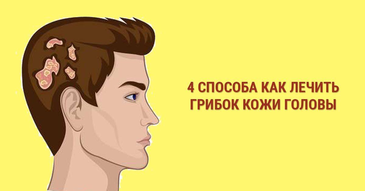 Что делать если у вас обнаружили грибок волосистой части головы