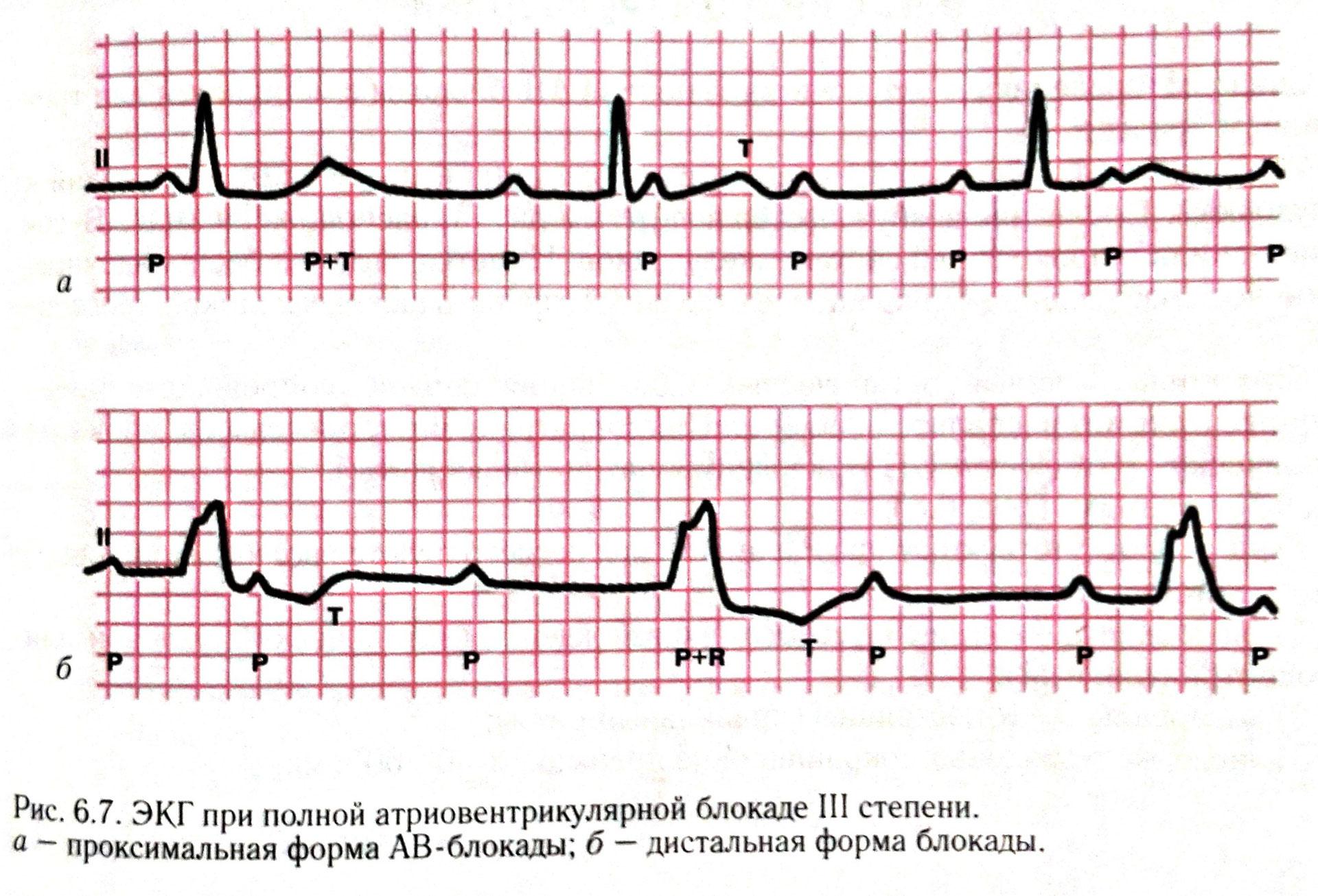 Ав-блокада (атриовентрикулярная): понятие, степени, чем грозит, лечение