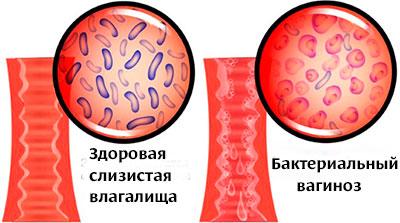 Что такое бактериальный вагиноз, как проявляется, чем его лечить?