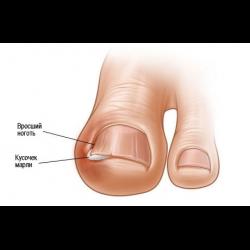 Как удалить вросший ноготь на ноге: лечение лазером, народные средства