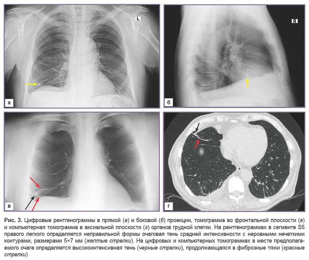 Расшифровка кт: картина фиброзных изменений в легких