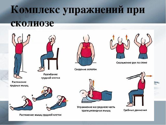 Правила и принципы выполнения упражнений при сколиозе 2 степени