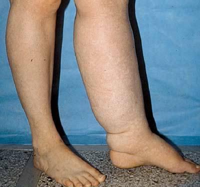 Лимфостаз - что это? симптомы и лечение, стадии, препараты   здрав-лаб