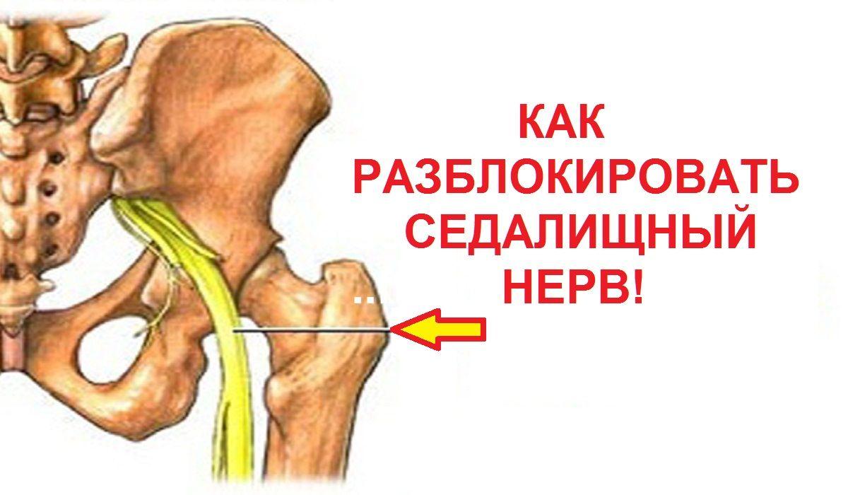 Симптомы и лечение седалищного нерва