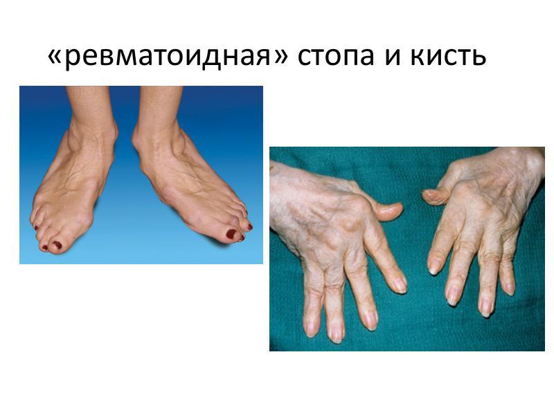 Ревматоидный артрит - симптомы, лечение, диагностика у взрослых и детей