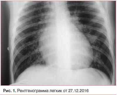 Могут ли быть боли в спине при пневмонии