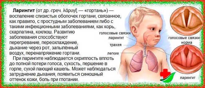 Сухой кашель при фарингите: лечение