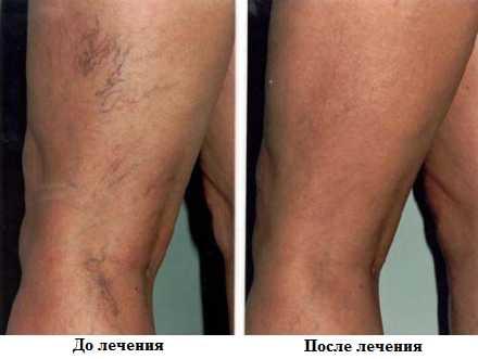 Лечение купероза лазером, удаление сосудистых звездочек, лазерное удаление сосудов на лице и теле, удаление капилляров лазером